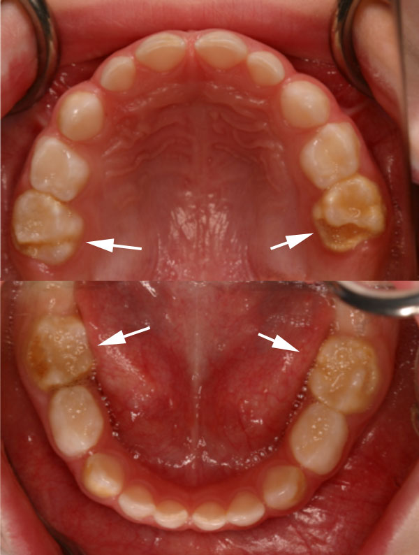 Hypomineralisation second primary molars and cuspids
