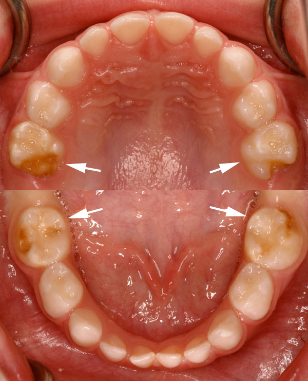 Hypomineralisation second primary molars