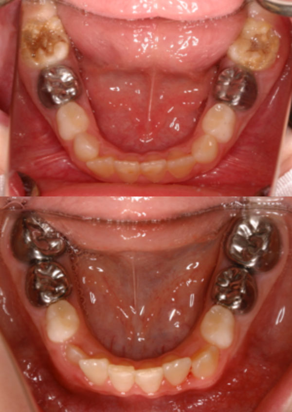 Preformed stainless steel crowns stabilise affected teeth